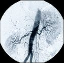 Angiogram of kidneys and aorta showing disease