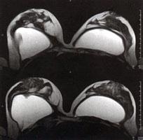 Transverse high-resolution MRI scan of breast and implants
