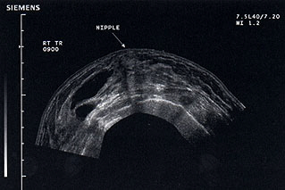 Panoramic ultrasound of the breast showing proliferative breast disease and the lateral predominance of multiple cysts