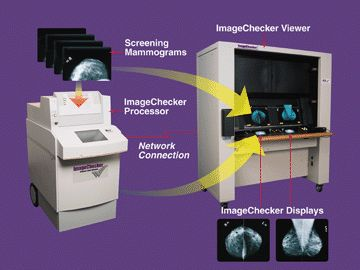 Computer-Aided Detection System for Digital Mammograms
