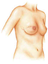 Breast reconstruction with implant
