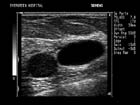 Adjacent breast masses: one a debris-filled cyst, the other a simple cyst.