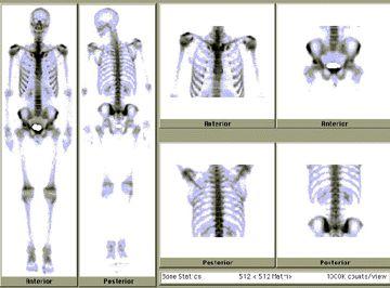 Nuclear Medicine Bone Scan