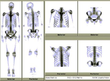 Normal Bone Scan Nuclear Medicine