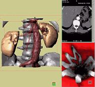 3D CT of aortic stent in place