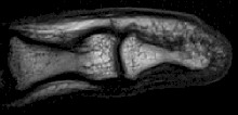 Hi Resolution MRI of a finger