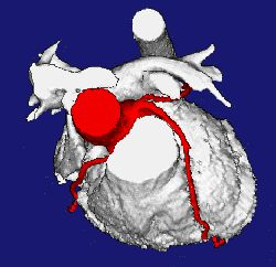 3D reconstruction of the heart showing arteries in red