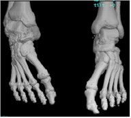 3D CT image of feet and ankles
