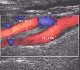 Ultrasound of carotid artery showing an stenosis in blue