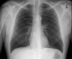 Anterior-posterior view chest x-ray image